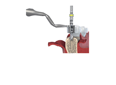 guided-surgery